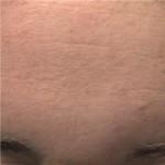 Colour Image -- After Treatment