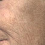 Texture - Before Treatment -- Colour Mode
